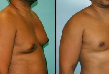 Γυναικομαστία: Πώς θα την αντιμετωπίσετε – Εικόνες πριν και μετά την εγχείρηση